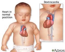 Obat jantung anak